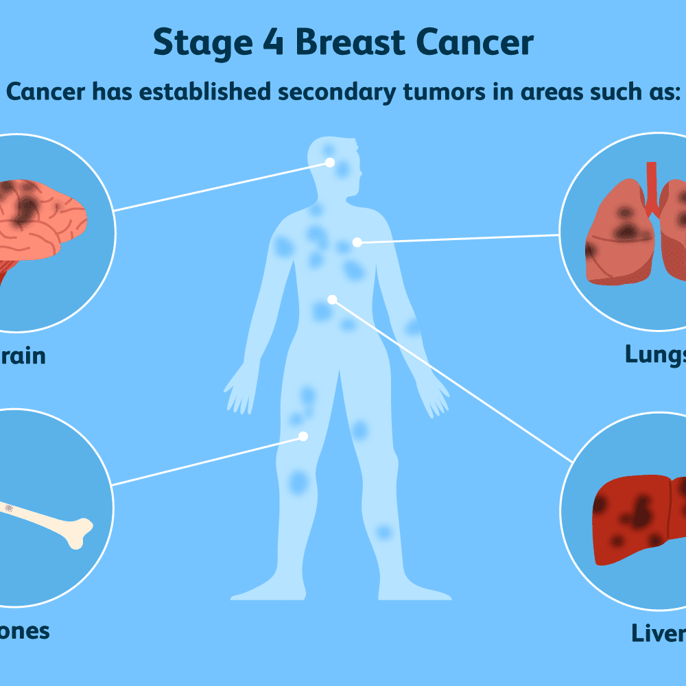 skin moles on breast or cancer in a mammogram